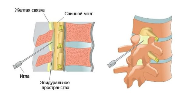 A nyaki osteochondrosis fejfájás kezelése: a terápia kiválasztása - Sérülések -