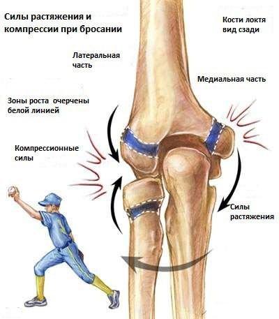 Kéz a fájdalom karjában: miért fáj és hogyan gyógyítható?