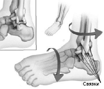 Osteoarthritis arthrosis - tünetek és kezelés, fotó