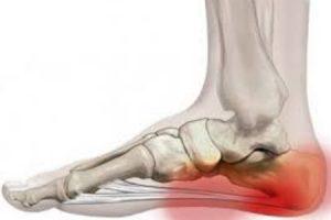 ficus ízületi fájdalom esetén lehetséges-e futtatni a bokaízület artritiszével