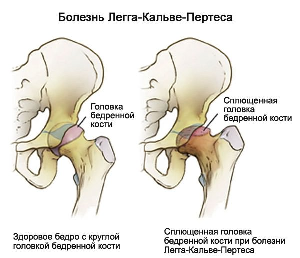 Tünetek és az arthrosis kezelése 2. fokozat: a betegség teljes leírása