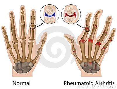 az ujjak ízületei fájnak a munka után fájdalom az ujj ízületében, amikor megnyomják