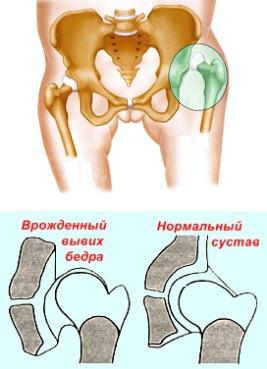 hogyan kezeljük a csípő dysplasia véleménye a csípőízület deformált ízületi kezelése