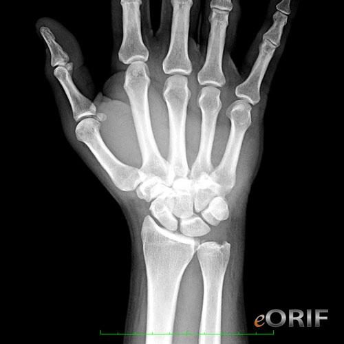 Hogyan lehet azonosítani és gyógyítani a hüvelykujj diszlokációját? - Masszázs January