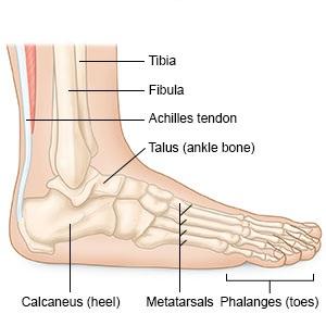 Vékony ortézis a bokaízület stabilizálásához