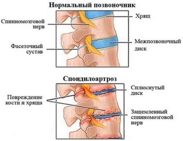 az ujjak ízületi gyulladásainak kezelésére szolgáló készítmények csuklószalag gyulladás