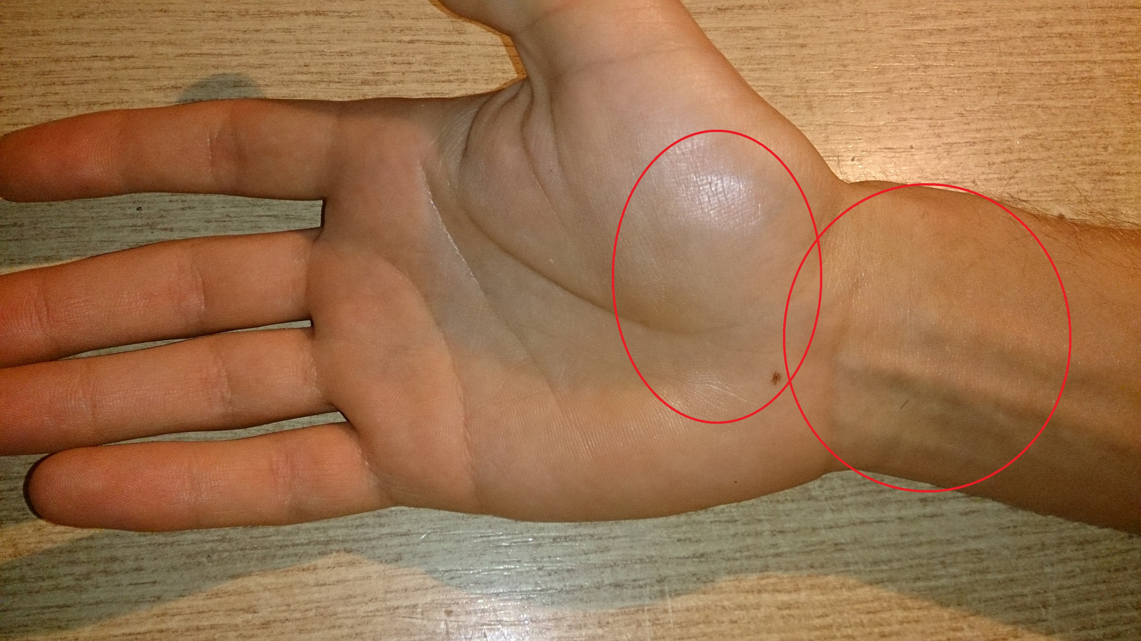 a kéz minden ízülete fáj, mi az