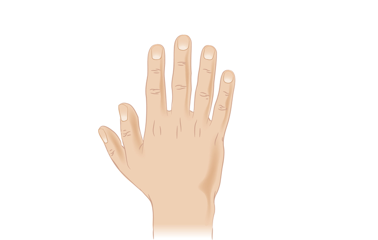 kezelje a hüvelykujjízületet