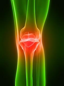 medence kötőszöveti betegségek duzzadt minden ízület fájdalom