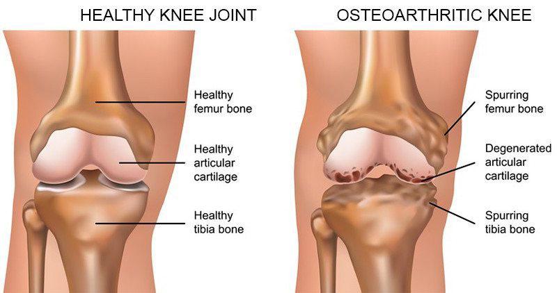 a csípőízület deformáló artrózisának osztályozása hogyan enyhíthető a kar ízületi fájdalma