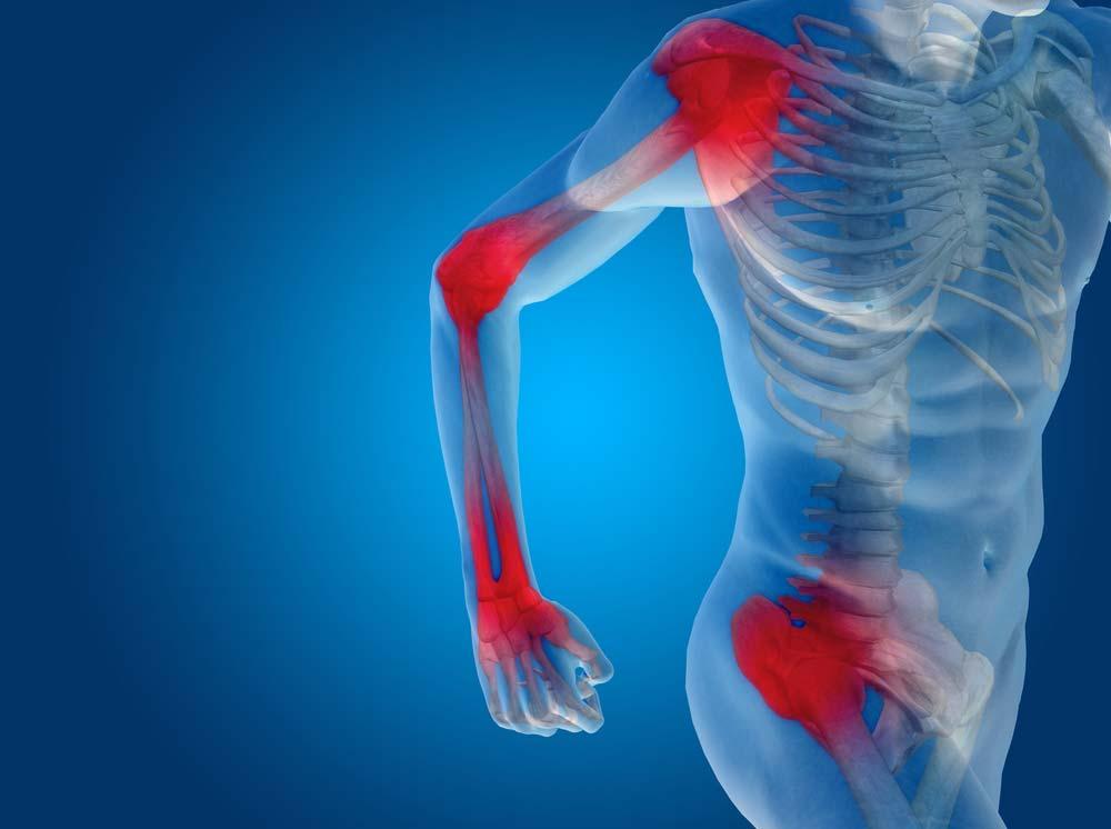 kenőcs a lábujjak ízületeinek artritiszére