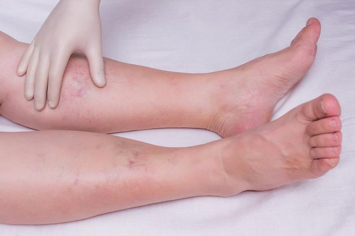 boka fájdalom sarok láb