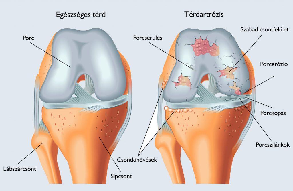 az íves ízületek artrózisának kezdeti jelei