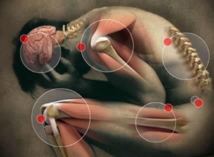 milyen gyógyszer az ízületekre vándorló fájdalom a csípőízületben