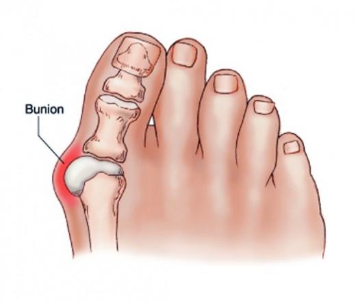 nagy lábujj ízületi betegség kezelése válltáska sérülése