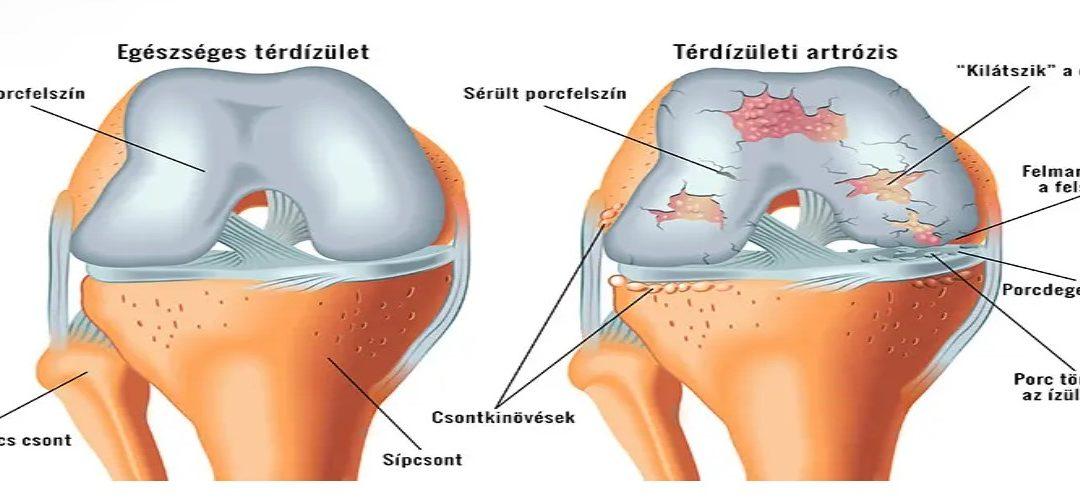 fájdalomcsillapítás térd artrózis esetén a térdízület kezelésének ocp-je