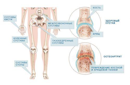 egy ember kezének ízületei fájnak a kezelést izomfájdalom a karban