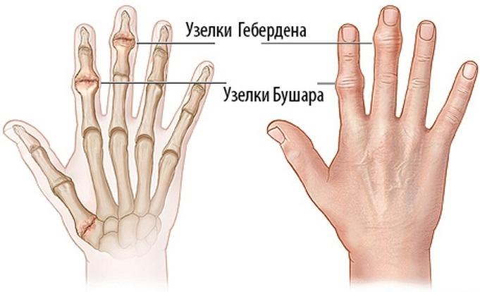 Mi a teendő, ha az ujjak ízületei fájnak: az okok és a kezelés - Könyök