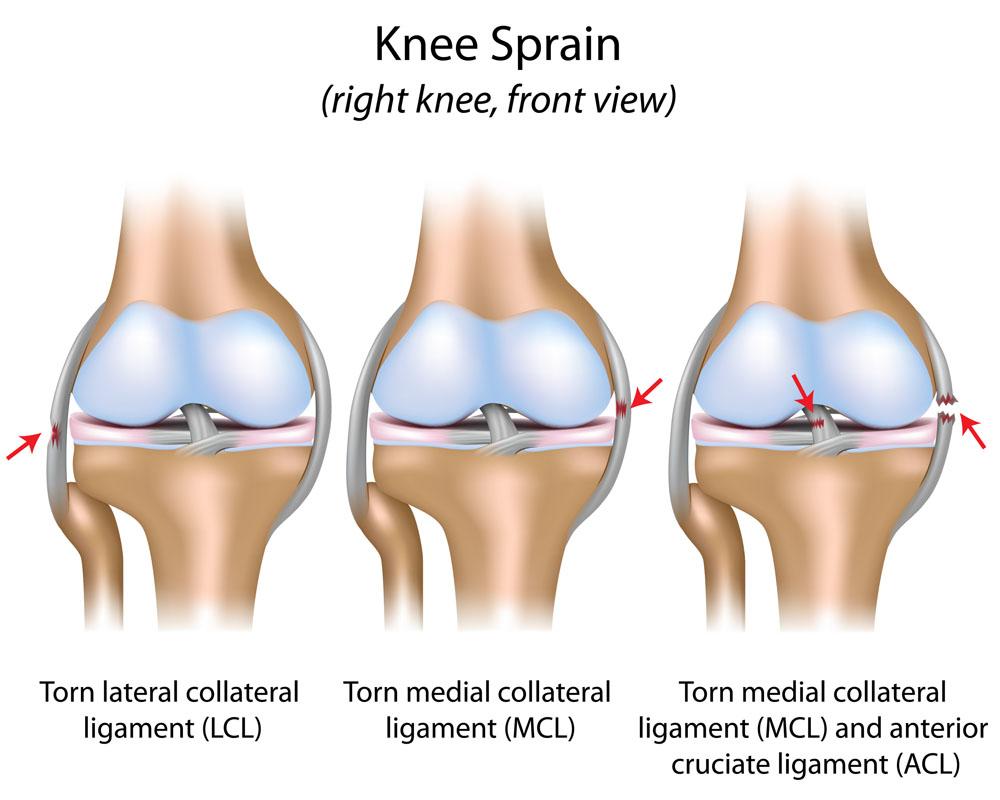 artrózis mikrohullámú kezelése általános artrózis kezelése