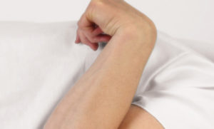 térd tünetek periarthritis és kezelése