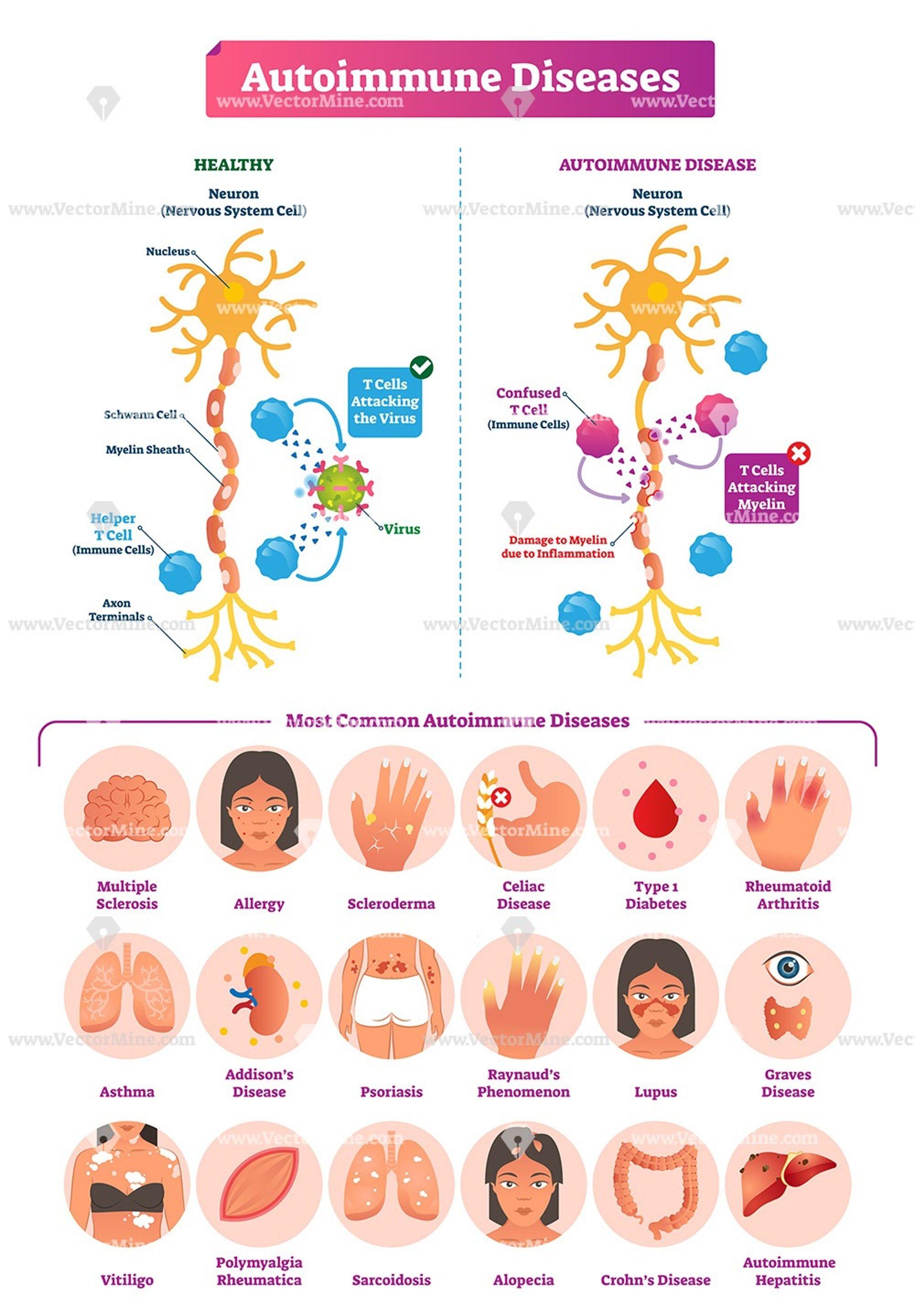 macularis arthrosis kezelés