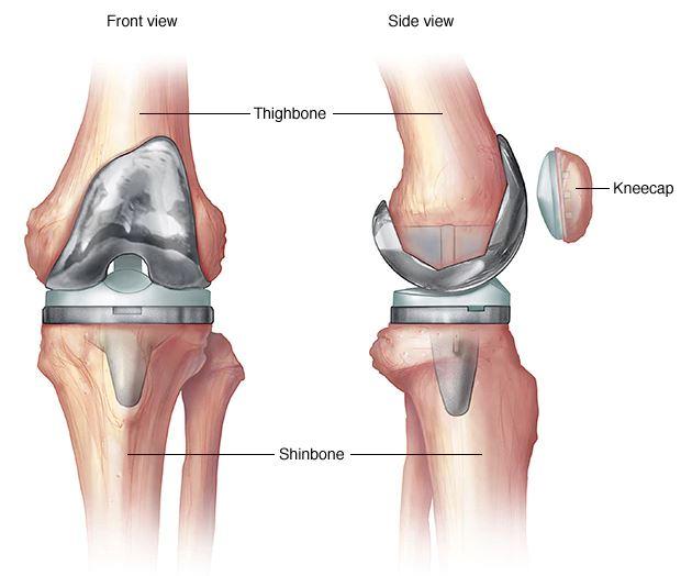 repedés a vállízületben az őszi kezelés során artrózis új kezelési módszerek