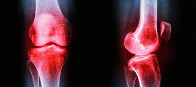 a térdízületek osteoarthrosisának kezelése