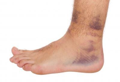 Az ínszalagszakadás tünetei és kezelése