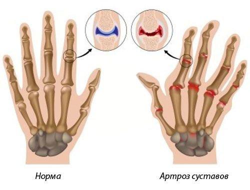 ha az ujjak ízületei fájnak, mi az