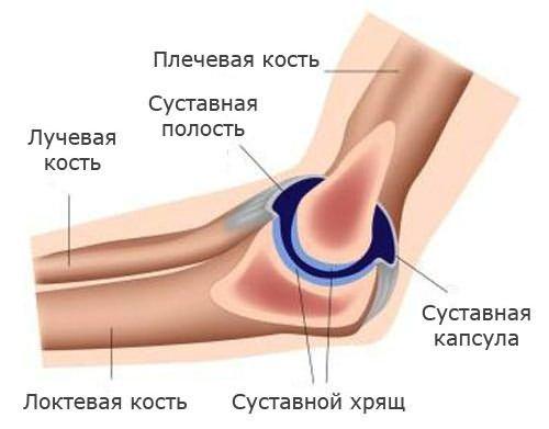 fájdalom és bőrpír a könyökízületben