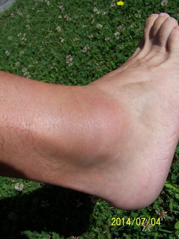 a lábak duzzadása az ízület alatt