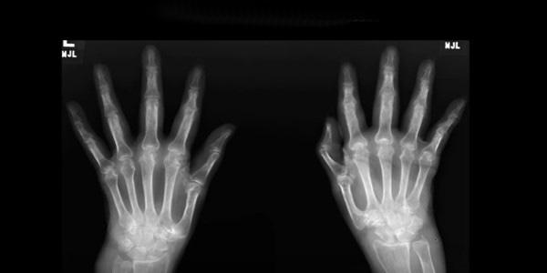 a kezek interfalangeális ízületei fájnak ha a váll fáj az ízületben, mit kell tenni