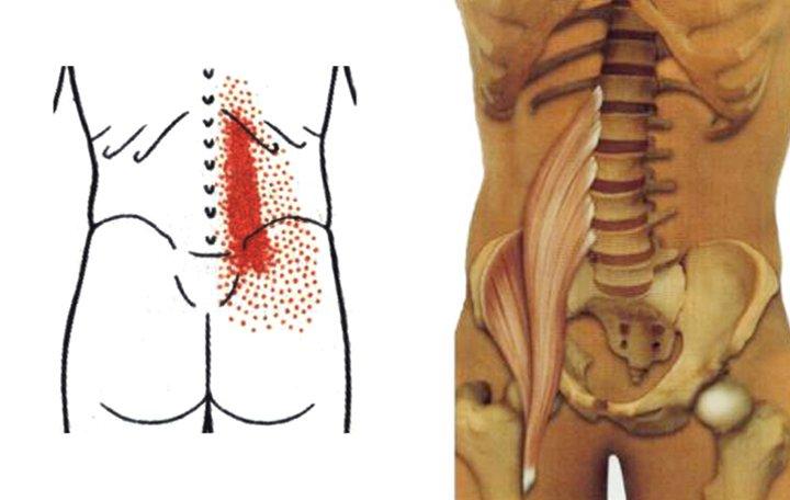 ízületi fájdalom skoliozisból