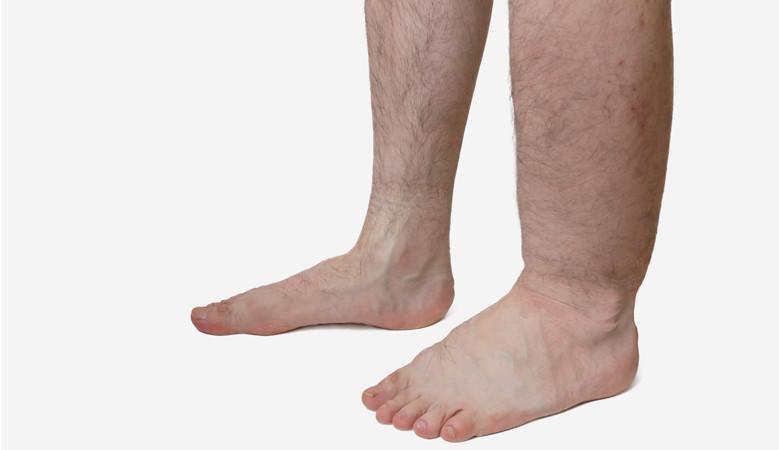 a láb duzzanata térd törés után