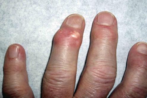 a kar ujjízületének ízületi gyulladása fájó ízületek és izmok kezelése