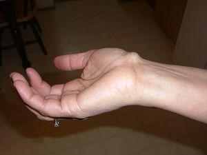 Csuklótáji alagút szindróma (Carpal tunnel syndrome)