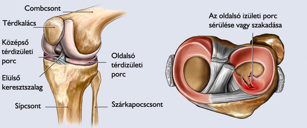 a térd posztraumás ízületi gyulladásának kezelése táplálkozás a térd artrózisának kezelésében