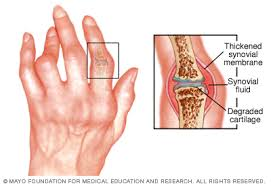 a kéz vállízülete kezelése fájdalom a jobb térdben