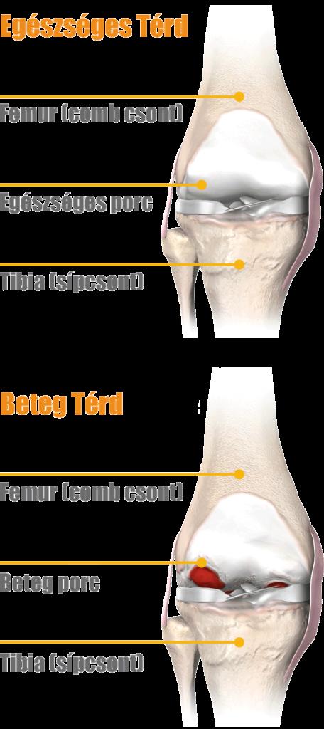 térdfájdalom a betegség jelei