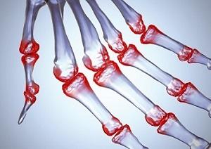 fájdalom az egész test ízületeiben és az izmokban fájdalom a boka lábainak ízületeiben