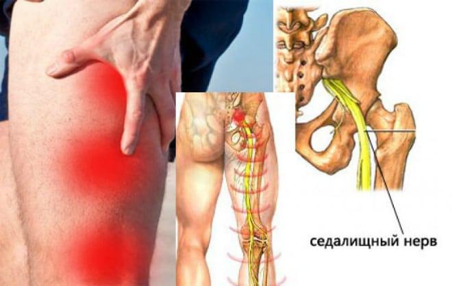 A csípőízület koxarthrosise - Bőrgyulladás