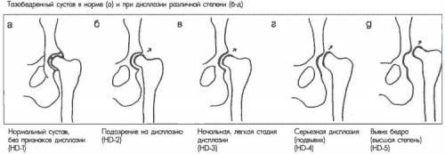 a csípőízület ligamentuma károsodása súlyos fájdalom a láb ízületeiben