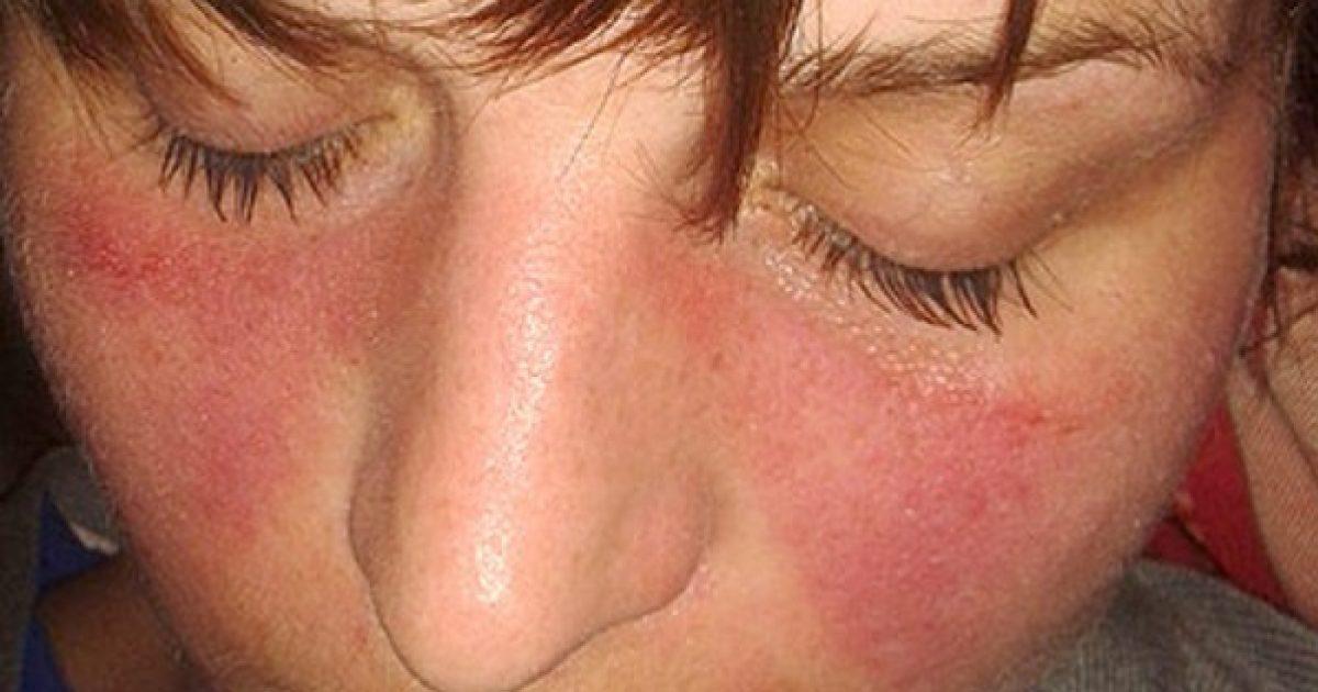 kötőszöveti betegség gyulladásos artropathia