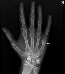 Kéztörés gyógyulása lökéshullám kezeléssel