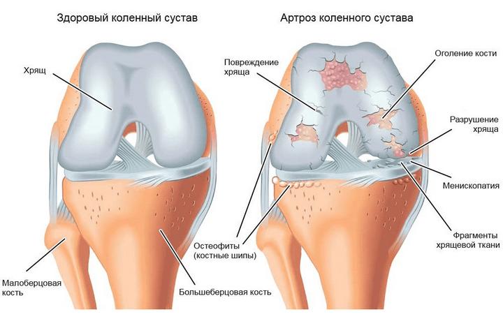 térdfájdalom a csípőízületről sugárzik a pitypang ízületei fájdalmának tinktúrája
