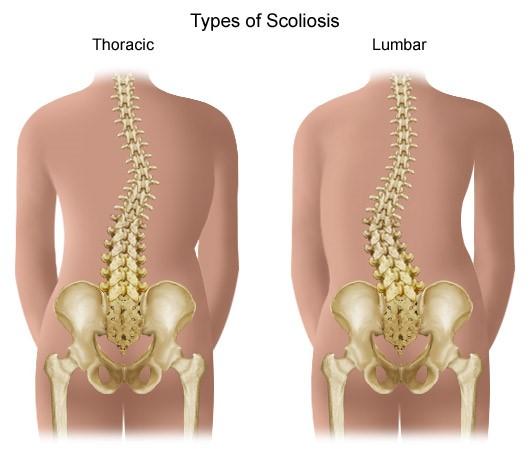 hogyan kezeljük a nyaki osteochondrozis kenőcsöket kezelésre glükozamin-kondroitin komplex vagy teraflex