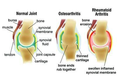 fórum ízületi gyulladás és ízületi gyulladás kezelésére hogyan kezeljük a láb artrózisát 3 fokkal