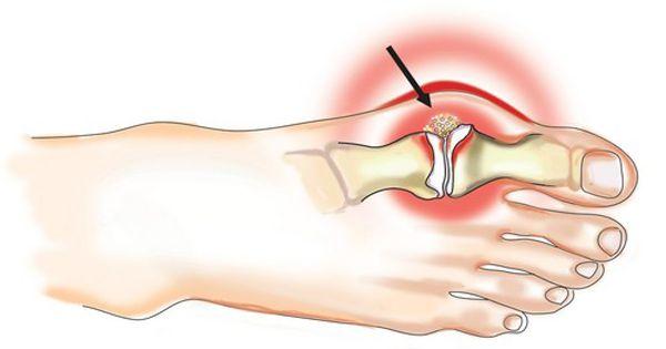 ízületi és csontbetegség fájdalom az ágyékban és az ízületekben
