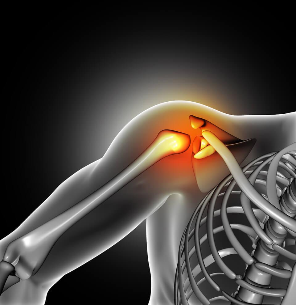 milyen fájdalmak vannak a csípőízület diszlokációjának