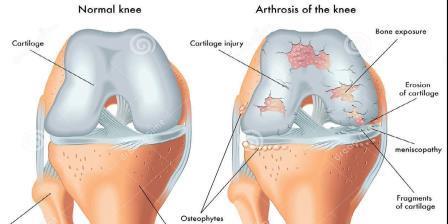 térd séta a térd artrózisával